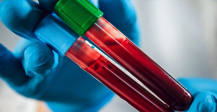 Type O, Rh- Blood May be Linked to Lower COVID-19 Risks: Researchers